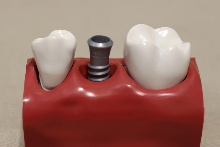 ein Zahnimplantat in Ungarn